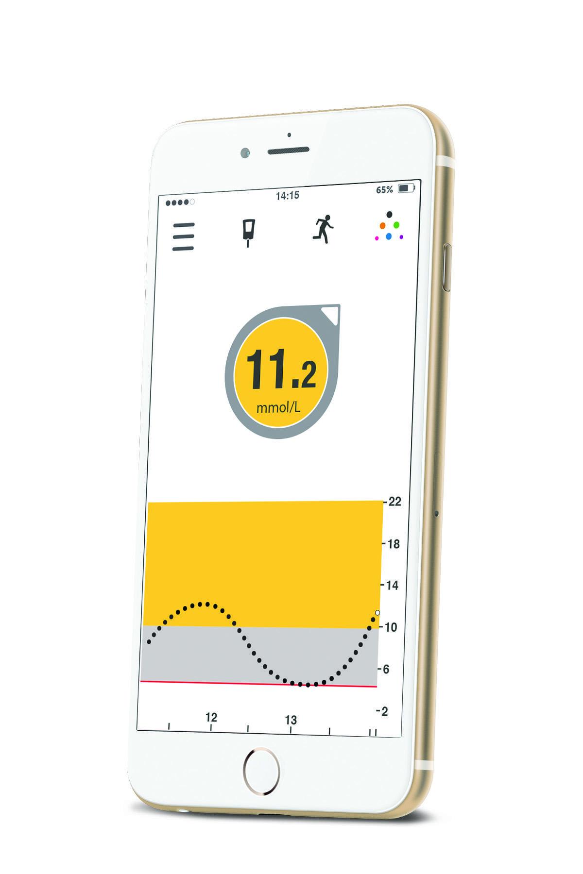 Dexcom G5 Mobile Cgm App Desang Diabetes Services
