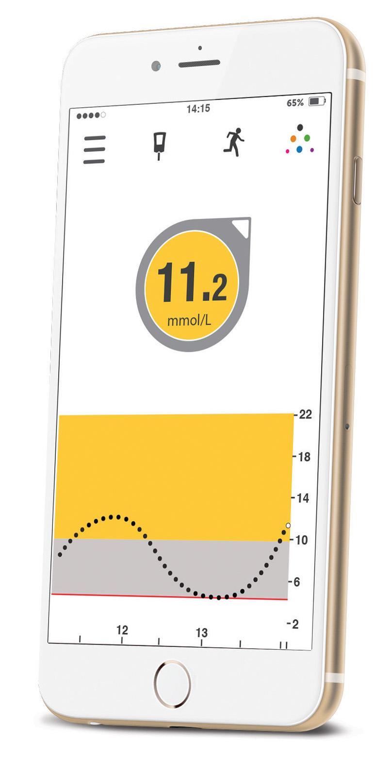 Dexcom G5 Mobile Special Offer Desang Diabetes Services